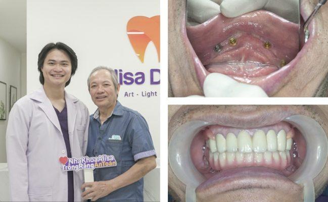 Mất răng có ảnh hưởng gì không 8