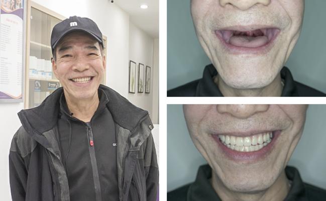 Mất răng ở người lớn 6