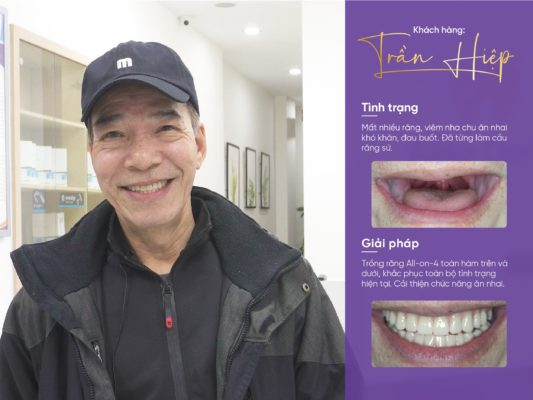 Mất răng nhai 2