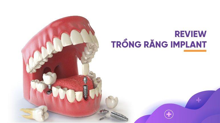 Tất tần tật về trồng răng implant