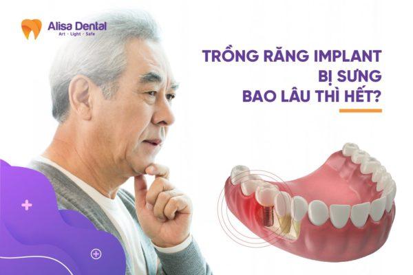Trồng răng Implant bị sưng 3