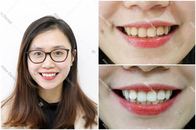 Tẩy trắng răng 499k 1