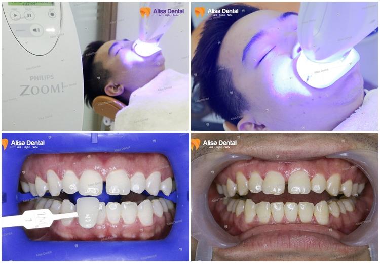 Tẩy trắng răng 499k 2