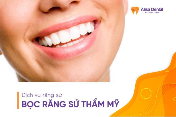 Bọc răng sứ thẩm mỹ - Nha khoa Alisa