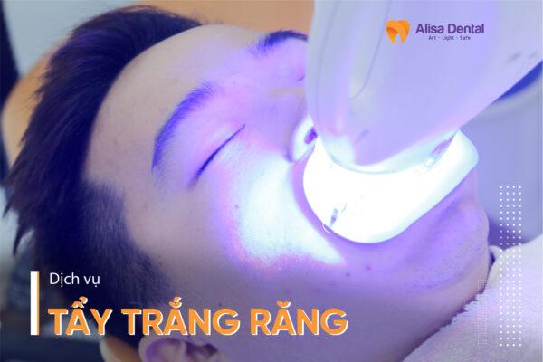 Tẩy trắng răng tại Nha khoa Alisa