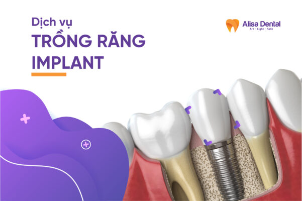 Trồng răng Implant - Nha khoa Alisa