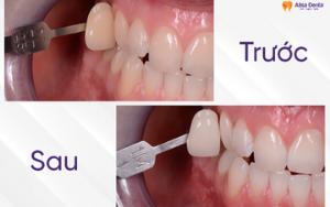 Hình ảnh tẩy trắng răng trước và sau