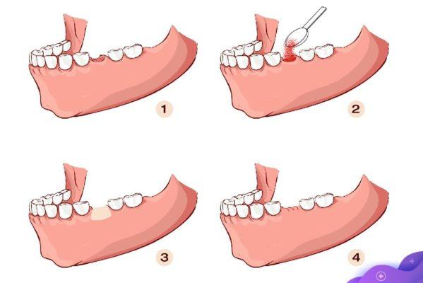 Ghép xương khi cấy ghép Implant