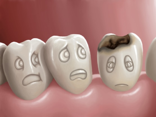 Mở rộng phần tiếp xúc răng